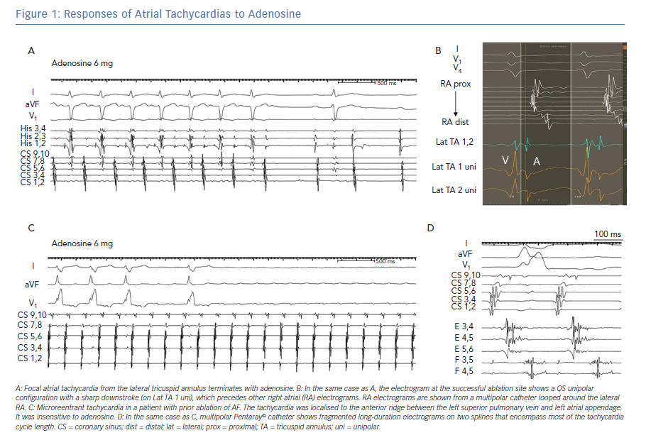 Responses of Atrial Tachycardias to Adenosine