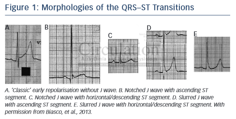 Figure 1: Morphologies of the QRS–ST Transitions