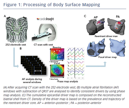 Figure 1: Processing of Body Surface Mapping