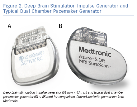 Deep Brain Stimulation Impulse Generator and Typical Dual Chamber Pacemaker Generator