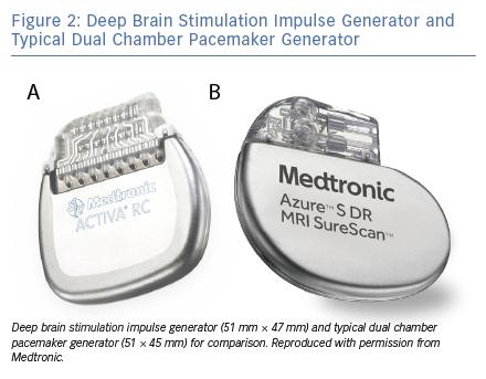 Pacemaker Defibrillator Implantation Deep Brain Stimulation