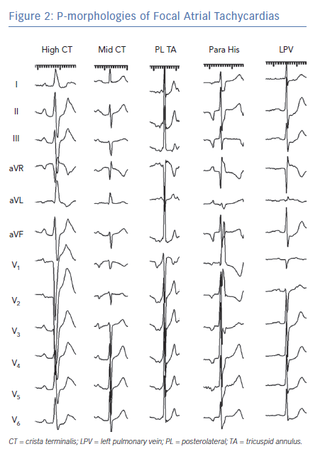 P-morphologies of Focal Atrial Tachycardias