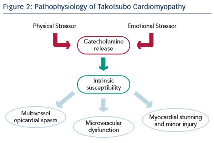 Figure 2 Pathophysiology Of Takotsubo Cardiomyopathy