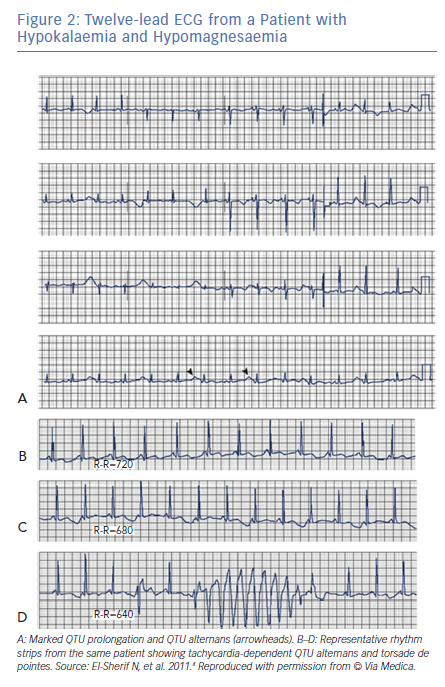 Twelve-lead ECG from a Patient with Hypokalaemia and Hypomagnesaemia