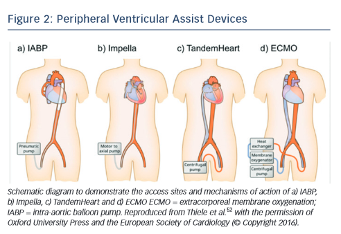 Figure 2: Peripheral Ventricular Assist Devices