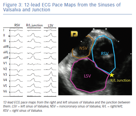 12-lead ECG Pace Maps from the Sinuses of Valsalva and Junction