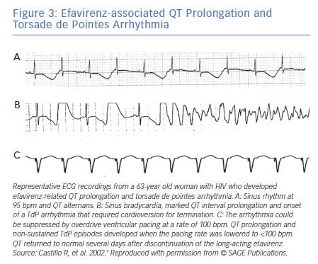 Efavirenz-associated QT Prolongation and Torsade de Pointes Arrhythmia