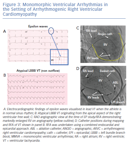 Monomorphic Ventricular Arrhythmias in the Setting of Arrhythmogenic Right Ventricular Cardiomyopathy