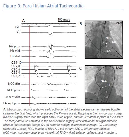 Para-Hisian Atrial Tachycardia