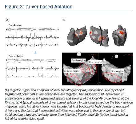 Figure 3: Driver-based Ablation