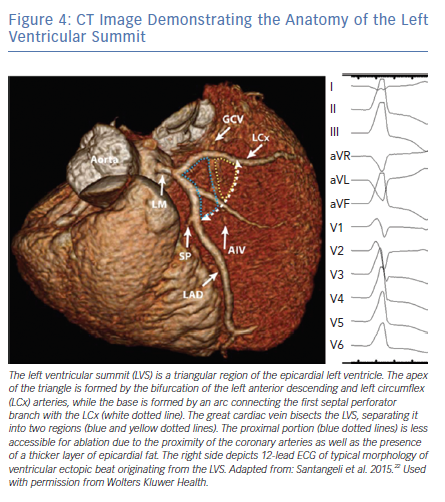 CT Image Demonstrating the Anatomy of the Left Ventricular Summit