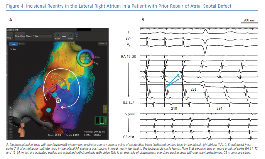 Incisional Reentry in the Lateral Right Atrium in a Patient with Prior Repair of Atrial Septal Defect