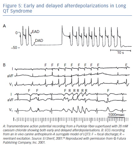 Early and delayed afterdepolarizations in Long QT Syndrome