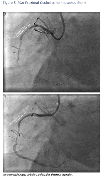 RCA Proximal Occlusion to Implanted Stent