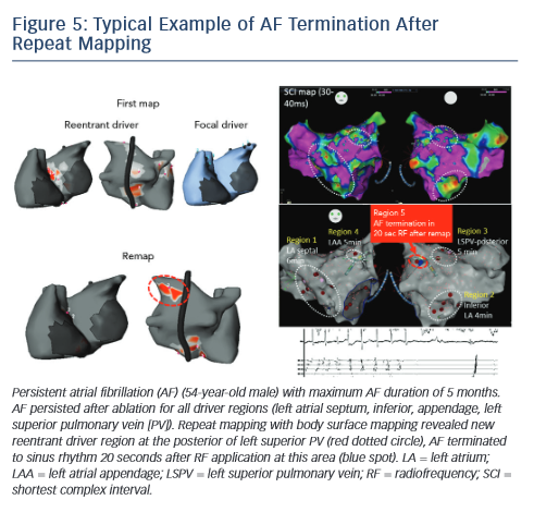 Figure 5: Typical Example of AF Termination After Repeat Mapping