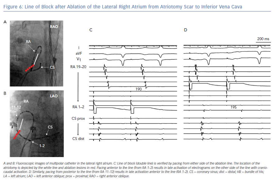 Line of Block after Ablation of the Lateral Right Atrium from Atriotomy Scar to Inferior Vena Cava