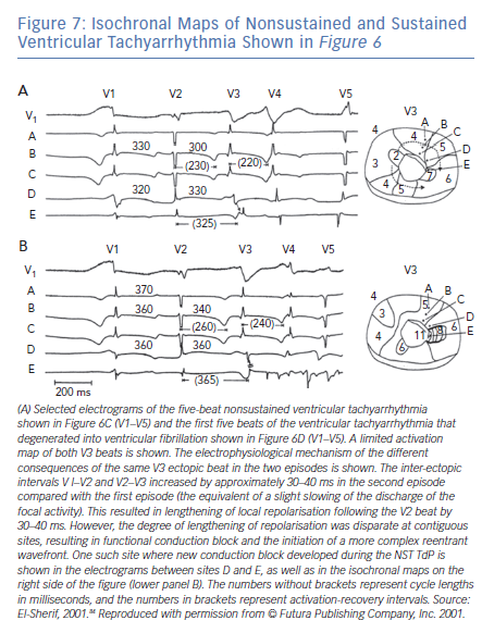 Isochronal Maps of Nonsustained and Sustained Ventricular Tachyarrhythmia Shown in Figure 6