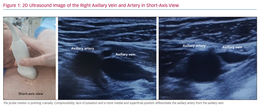 2D Ultrasound Image of the Right Axillary Vein and Artery in Short-Axis View