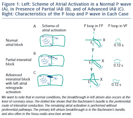 Figure 1: Left: Scheme of Atrial Activation in a Normal P wave (A), in Presence of Partial IAB (B), and of Advanced IAB (C). Right: Characteristics of the P loop and P wave in Each Case