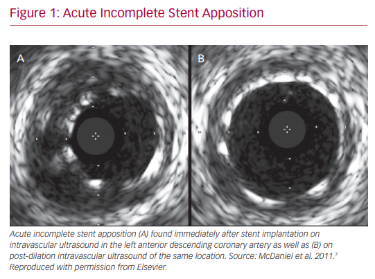 Acute Incomplete Stent Apposition