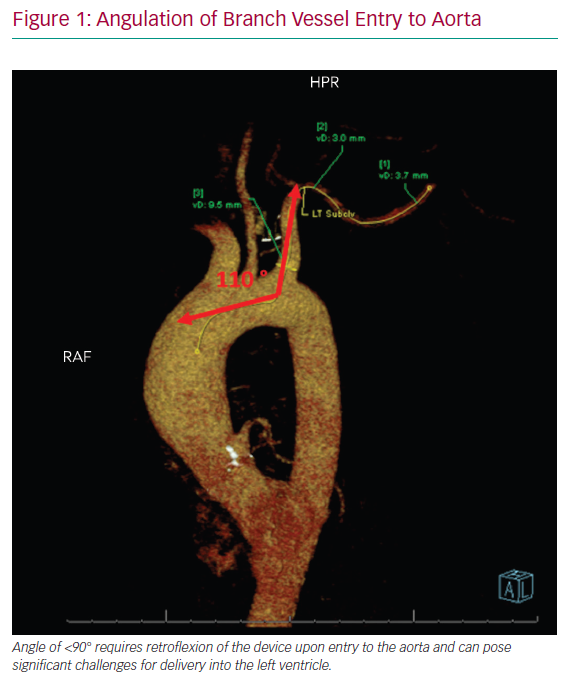 Angulation of Branch Vessel Entry to Aorta