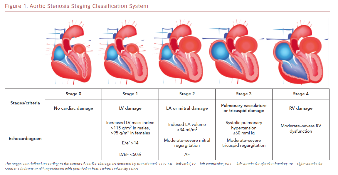 Aortic Stenosis Staging Classification System