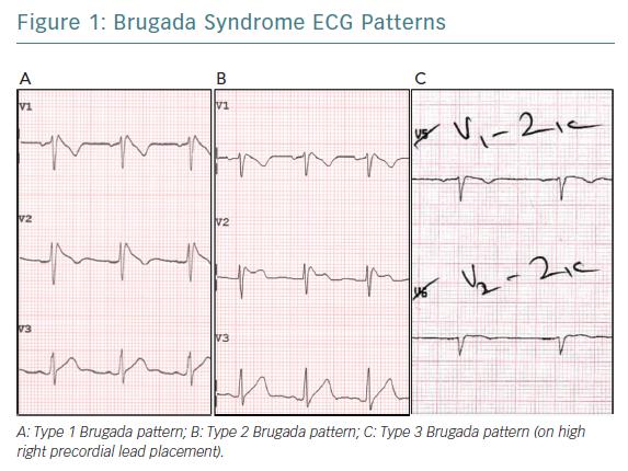 Brugada Syndrome ECG Patterns
