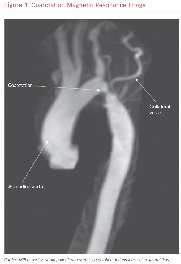 Coarctation Magnetic Resonance Image