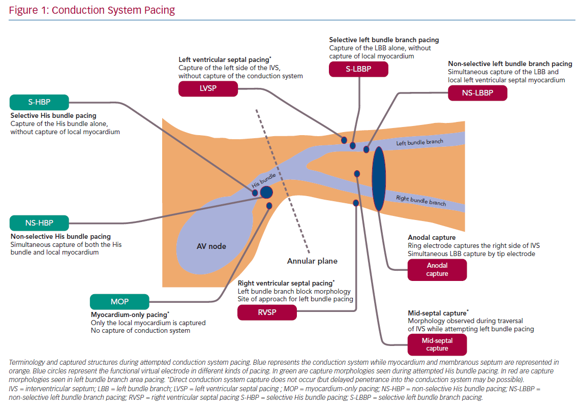 Conduction System Pacing