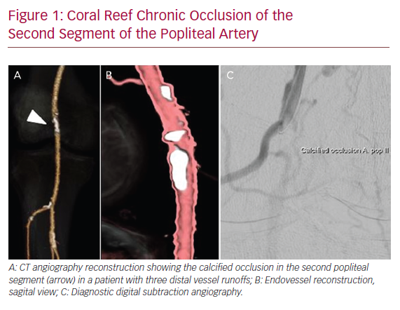 Coral Reef Chronic Occlusion of the Second Segment of the Popliteal Artery