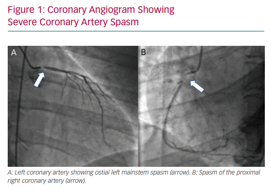 Coronary Angiogram Showing Severe Coronary Artery Spasm