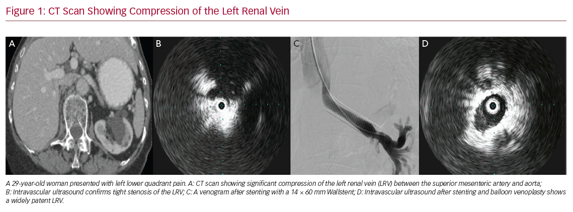 CT Scan Showing Compression of the Left Renal Vein