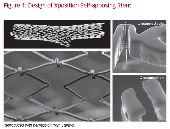 Design of Xposition Self-apposing Stent