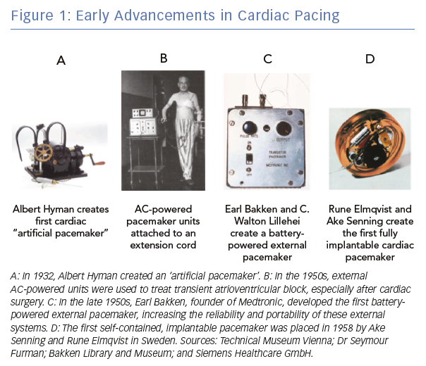 Early Advancements in Cardiac Pacing
