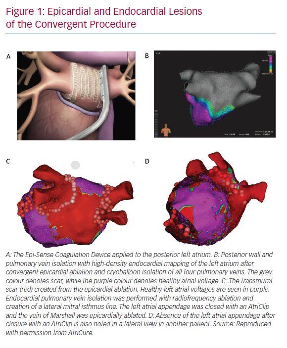 Epicardial and Endocardial Lesions of the Convergent Procedure