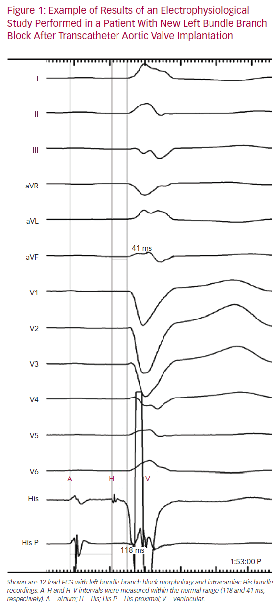 Example of Results of an Electrophysiological Study