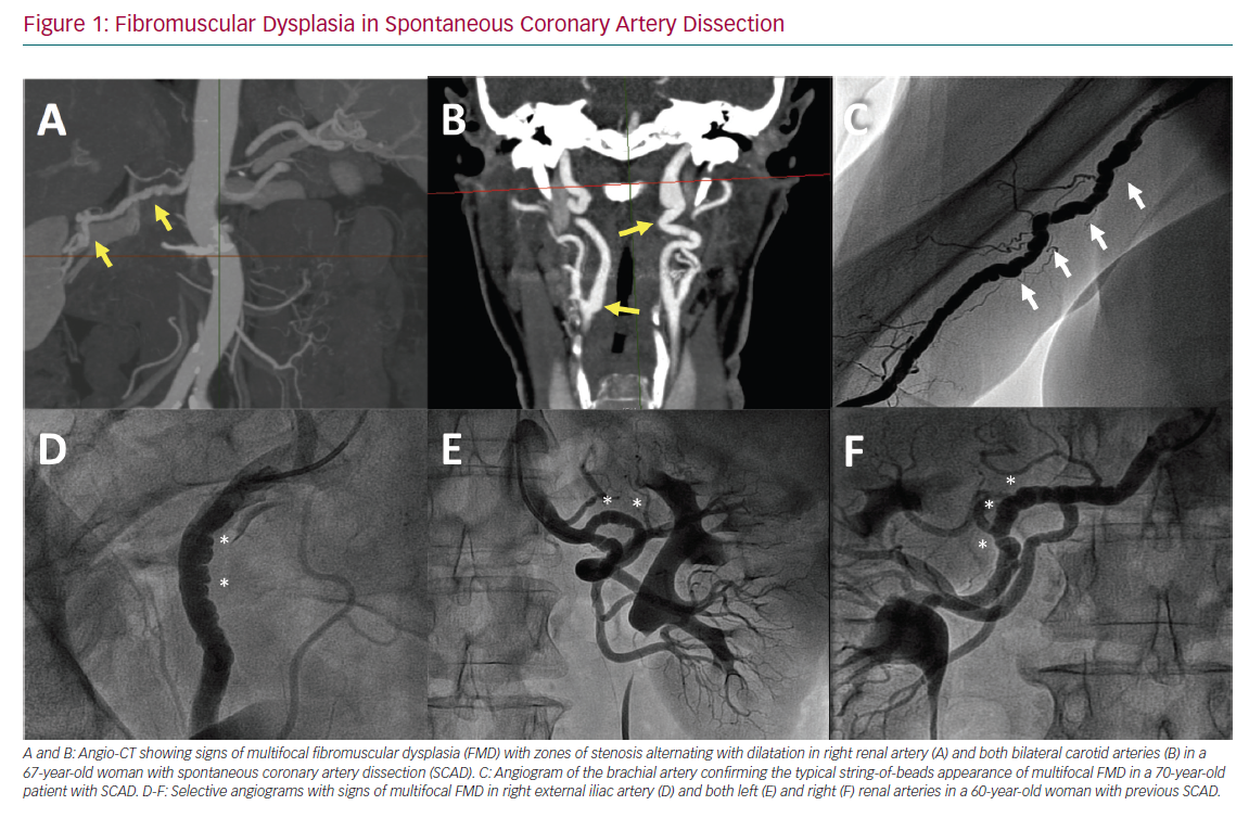 Fibromuscular Dysplasia in Spontaneous Coronary Artery Dissection