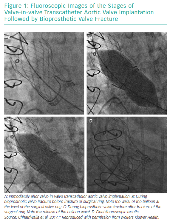 Fluoroscopic Images of the Stages of Valve-in-valve