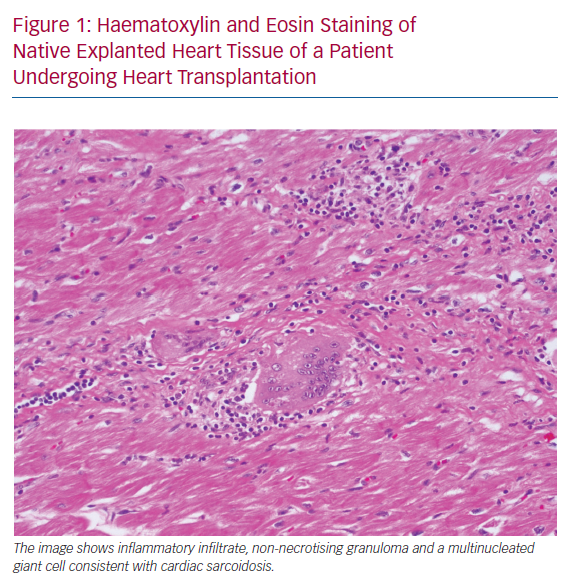 Haematoxylin and Eosin Staining