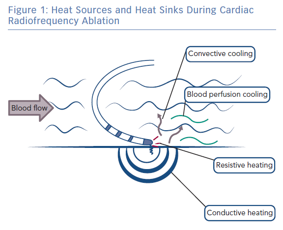 Heat Sources and Heat Sinks During Cardiac Radiofrequency Ablation
