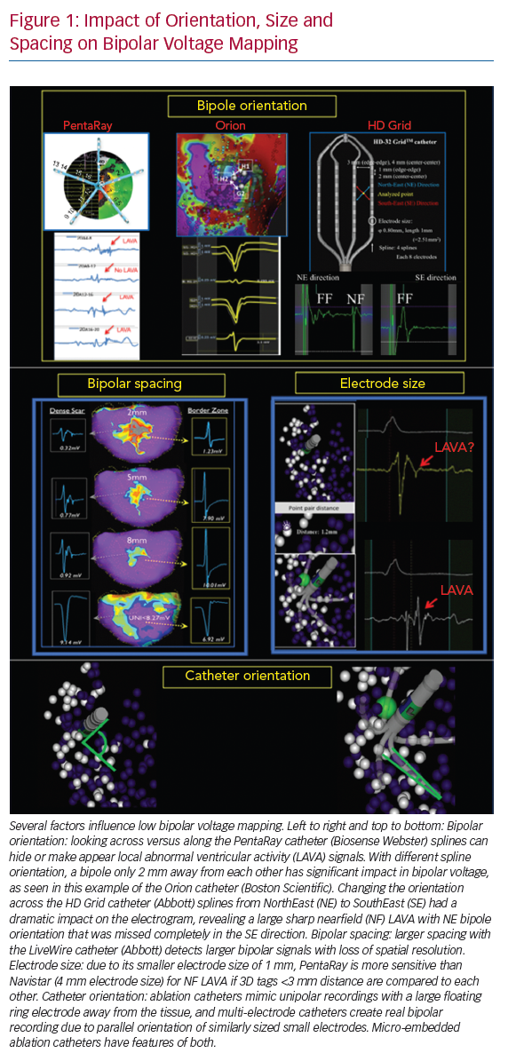 Impact of Orientation, Size and Spacing on Bipolar Voltage Mapping