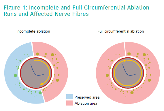Incomplete and Full Circumferential Ablation Runs and Affected Nerve Fibres