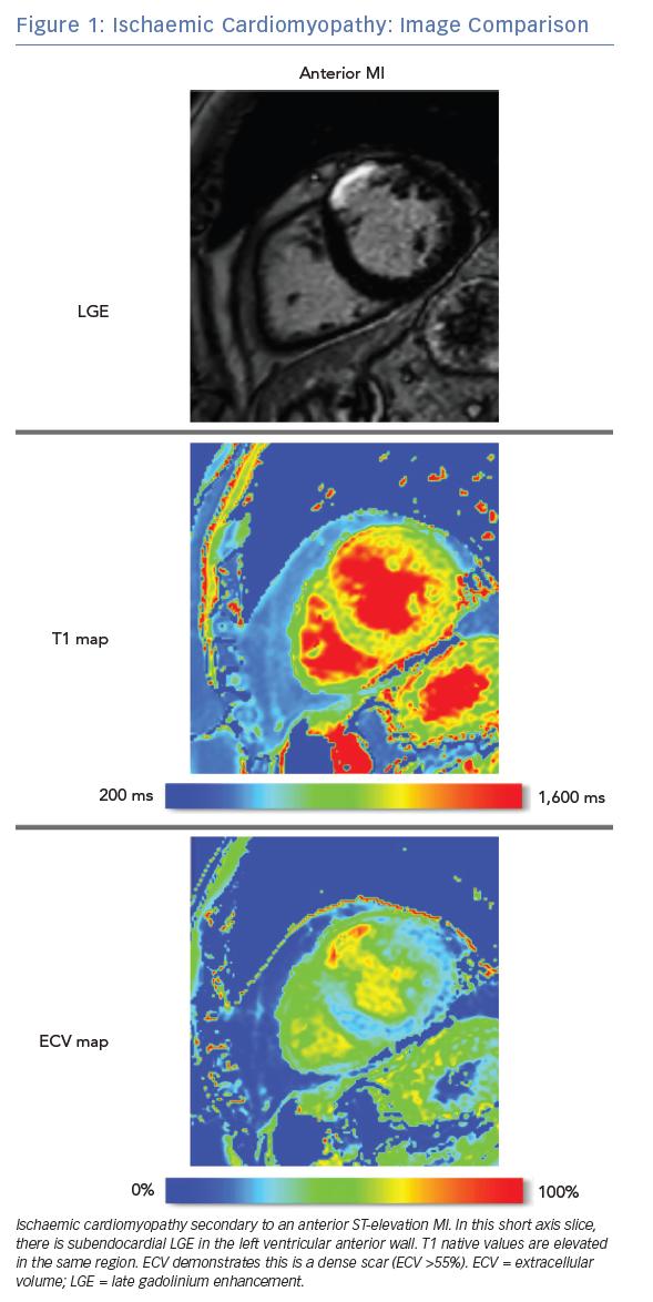 Ischaemic Cardiomyopathy: Image Comparison