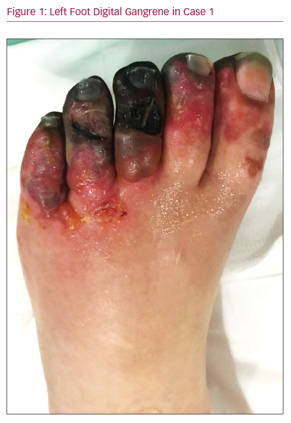 Left Foot Digital Gangrene in Case 1