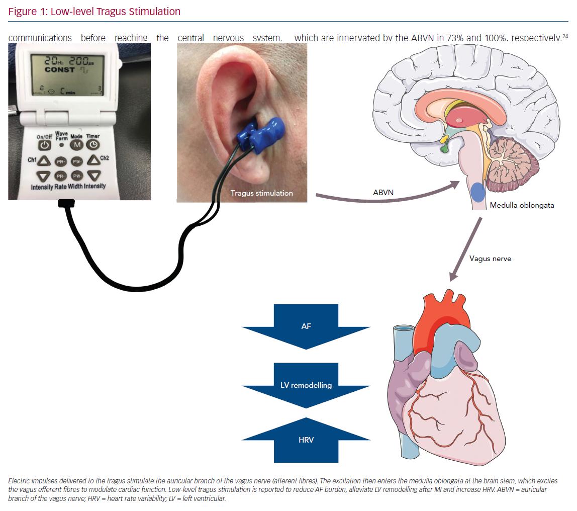 Low-level Tragus Stimulation