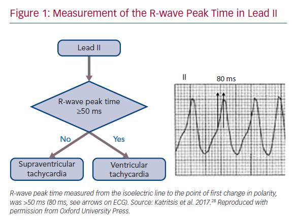 Measurement of the R-wave Peak Time in Lead II