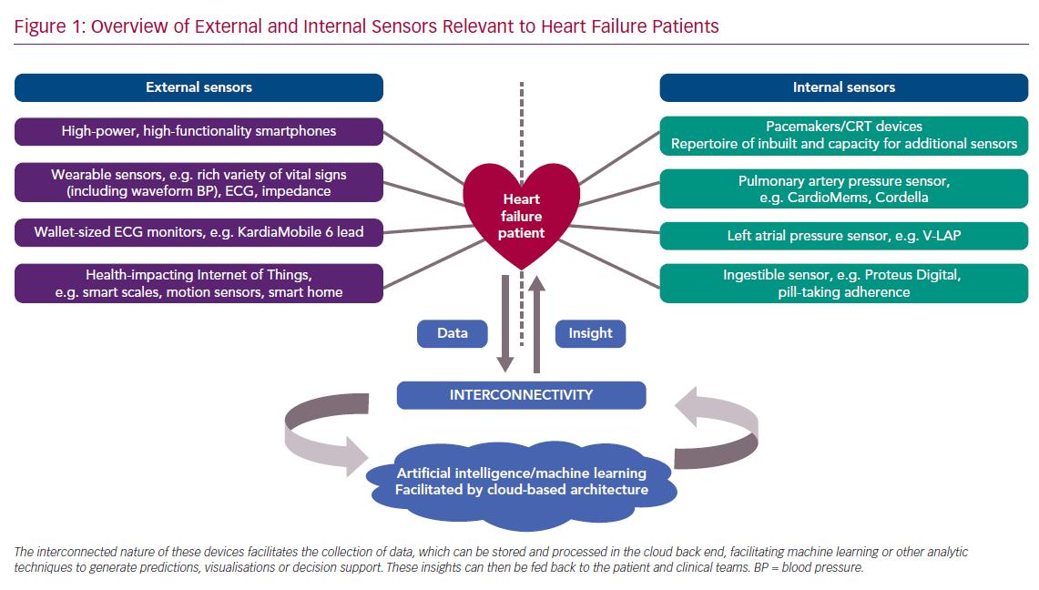 Overview of External and Internal Sensors