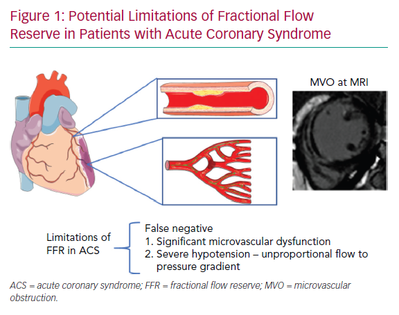 Potential Limitations of Fractional Flow Reserve in Patients