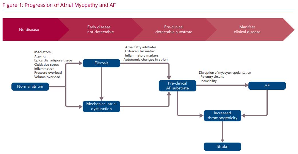 Progression of Atrial Myopathy and AF