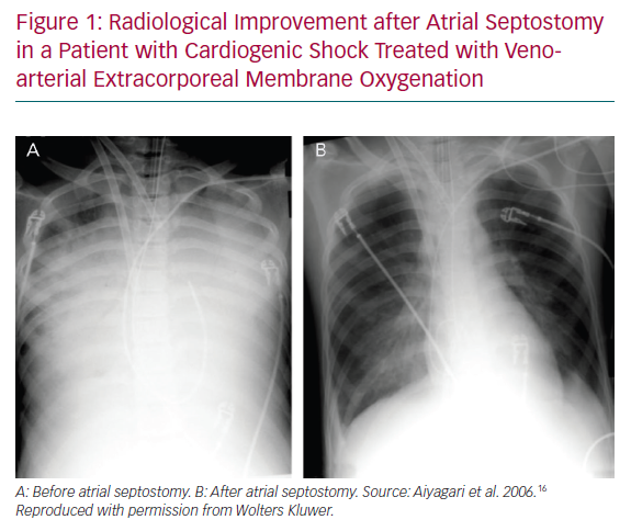 Radiological Improvement after Atrial Septostomy in a Patient